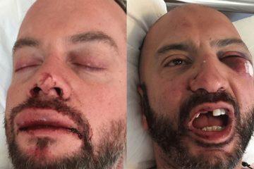 Γκέι ζευγάρι Λονδρέζων καταγγέλει ομοφοβική επίθεση και ξυλοδαρμό στη Μύκονο